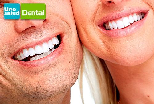87% Higiene Dental en Clínica Uno Salud, Stgo y Regiones.