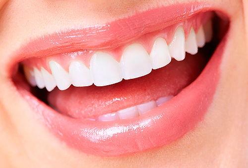 Sellantes dentales, Recoleta