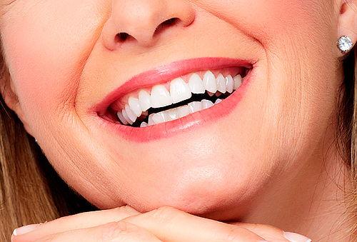 Limpieza Dental Completa + Flúor + 4 Sellantes, Providencia.