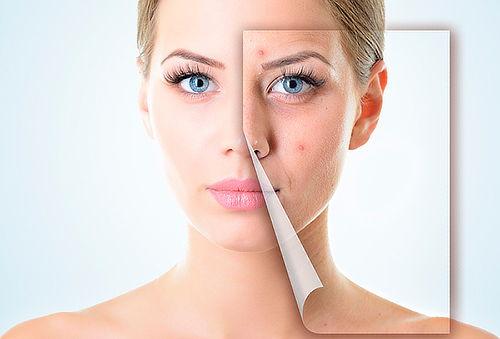 Peeling Químico para el acné, Providencia.