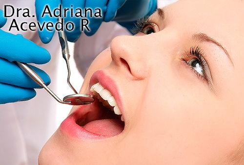 2x1 Limpieza Dental con Profilaxis + Prophy-Jet en Santa Ana