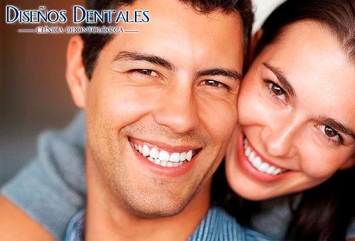 Blanqueamiento Dental con Cubetas + Profilaxis.