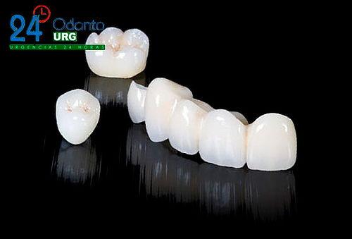 Corona Dental en Circonio en el Chico