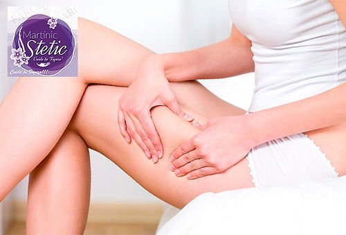 Elimina Celulitis en Piernas y Glúteos