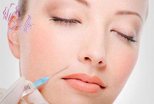 Relleno Facial con  Ácido Hialuronico en Chapinero