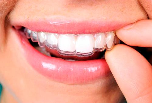 2X1 Guarda Dental y Limpieza con Ultrasonido 92%