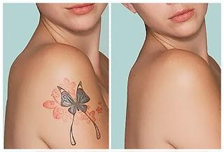 Eliminación de Tatuajes con Tratamiento Láser