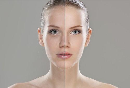 Rejuvenece con PRP + Limpieza Facial Expres