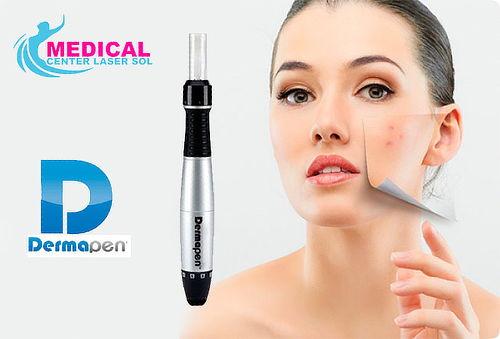 Rejuvenecimiento Facial Aplicada con DERMAPEN por Médico C.