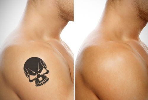 Adiós Tatuajes con Tratamiento Láser en Eterna Juventud