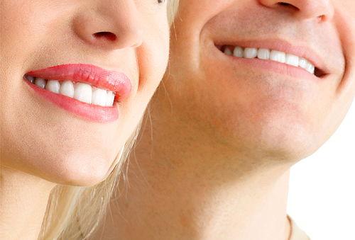 Implante Dental de Titanio en Virtual Dent