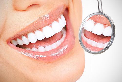4 Sesiones de Blanqueamiento y Más - SMILE DENT 95%