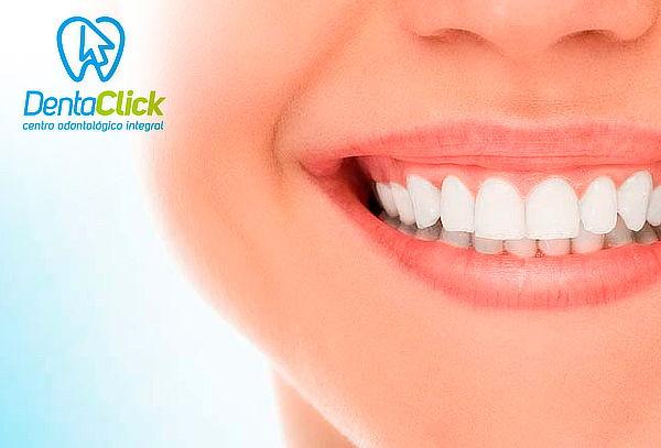 Blanqueamiento dental LED + Pulido + Flúor en DentaClick