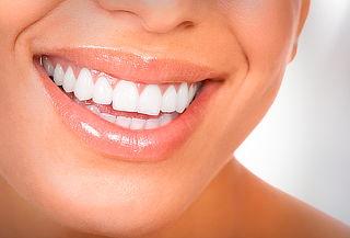 Limpieza Dental + Destartraje + Profilaxis, Stgo Centro