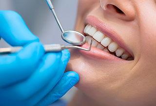 Limpieza Dental + Destartraje + Profilaxis + Blanqueamiento.