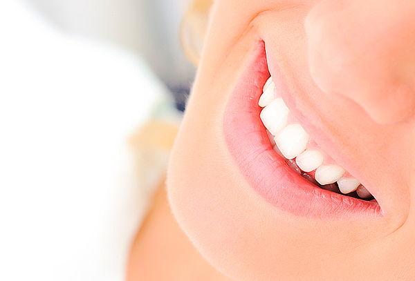 Fluorización Dental con Cubetas