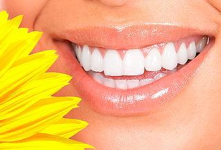 Limpieza dental con ultrasonido y profilaxis. Providencia