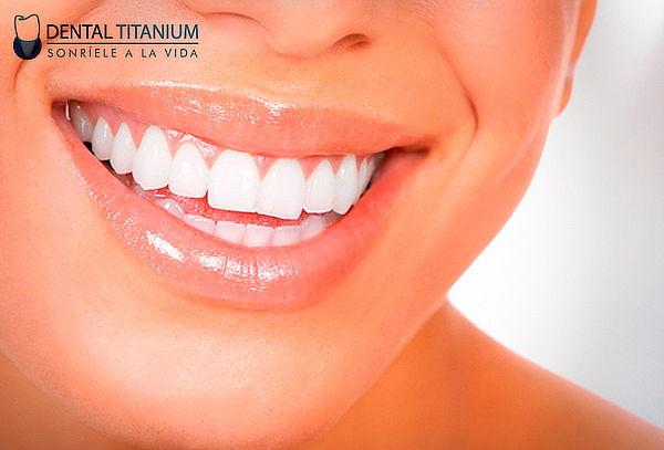 Blanqueamiento Dental LED + Retoque de Color + Limpieza
