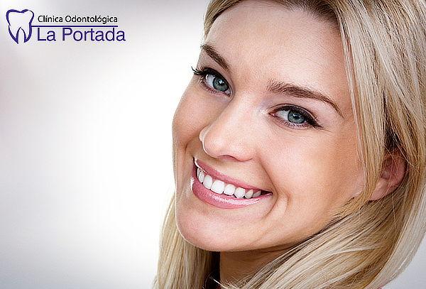 La Portada: Limpieza Dental Completa