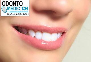 Limpieza Dental Profunda + Tapadura en Resina + Obsequio
