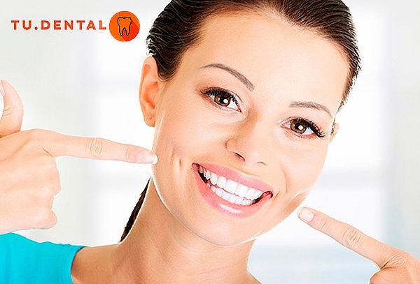 Blanqueamiento dental led + pulido coronario, 3 Sucursales