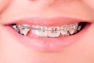 Instalación de Brackets Metálicos en Dentalrelax