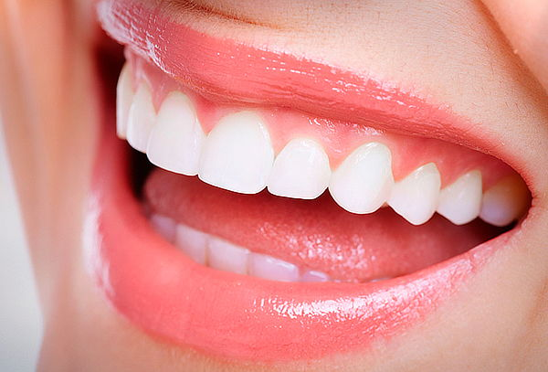 Blanqueamiento y limpieza dental Clínica Smer