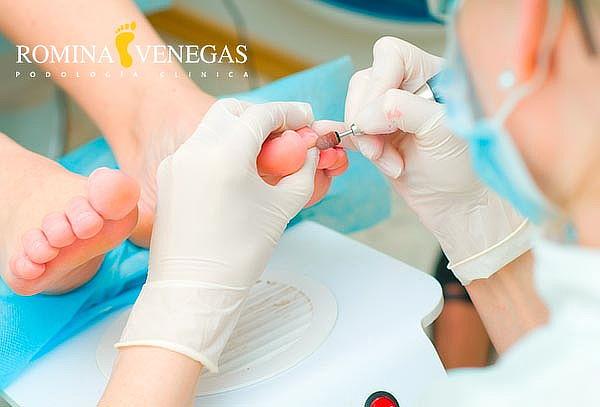 Tratamiento Podología Clínica + Hidratación + Masaje Podal