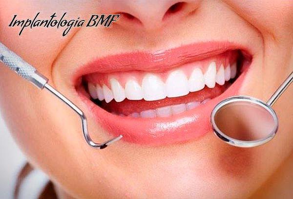 Limpieza Dental Profunda + Pulido Coronario + Flúor Barniz