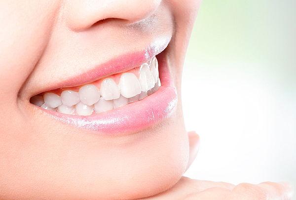 Limpieza Dental + Profilaxis en A&V Dental Providencia