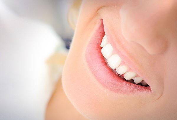 Blanqueamiento Dental + Limpieza, en A&V Dental Providencia