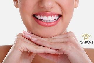 Limpieza dental + Profilaxis + Pulido coronario con flúor