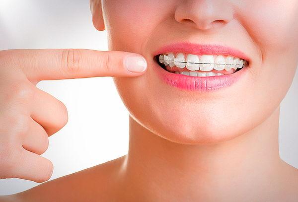 Limpieza Dental + Evaluación para Brackets, Stgo Centro