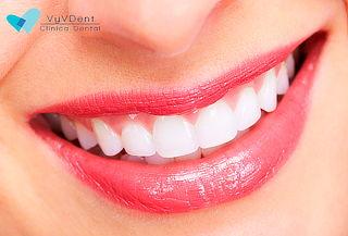 Blanqueamiento LED + Limpieza dental. Ñuñoa