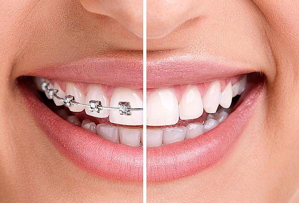 Instalación de Frenillos Centro Dental Pagliari, Providencia