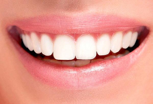 implantes dentales precios concepcion