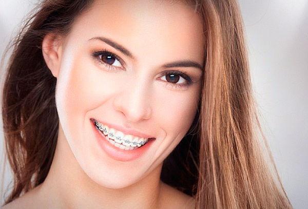 Instalacion de ortodoncia con Frenillos Cerámicos