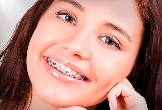 Ortodoncia con Instalación de Frenillos Metálicos y Más