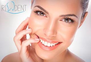 Limpieza Dental y Más en Clínica Rident