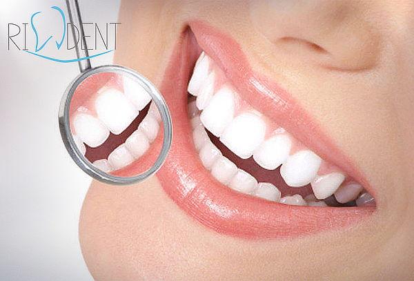 Clínica Rident: Blanqueamiento + Limpieza Dental