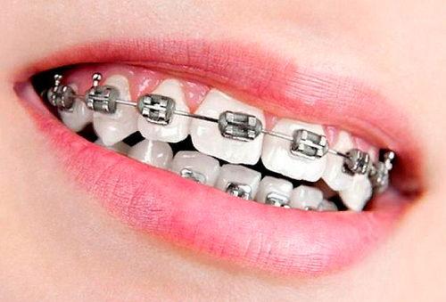 Tratamiento de Ortodoncia con Brackets o Frenillos Metálicos