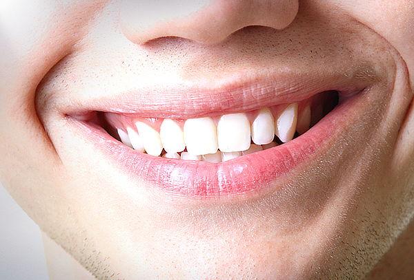 Blanqueamiento Dental + Limpieza Dental en Clínica Rident
