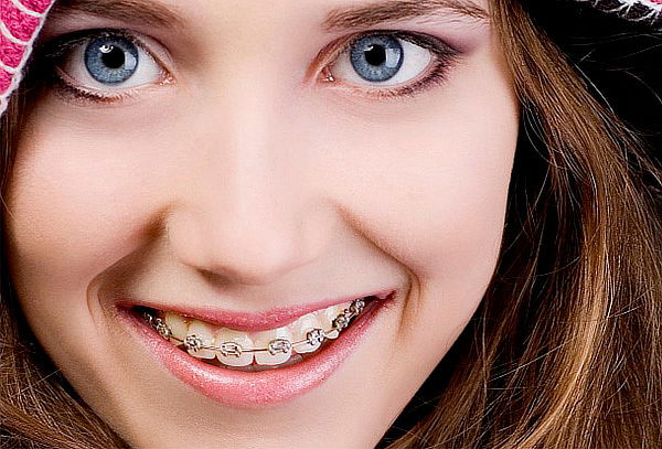 Ortodoncia Brackets Mini Roth + Radiografía Panorámica