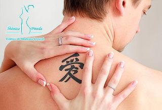 Remoción de Tatuajes con Láser el Poblado