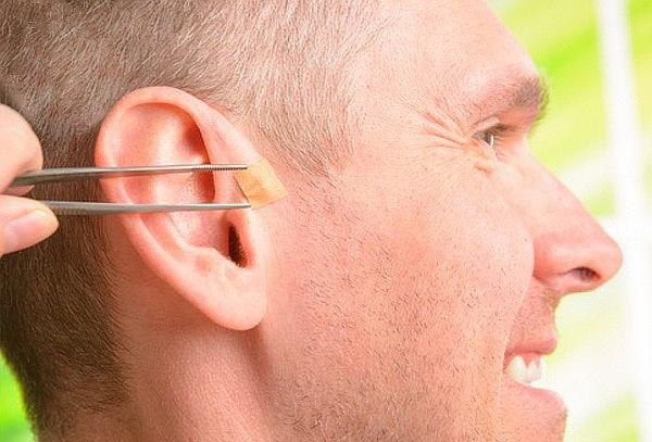 Balines en la oreja para adelgazar en medellin