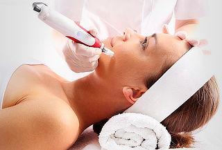 Microdermoabrasión Facial + Obsequio Ondulado de Pestañas