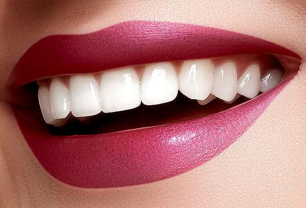 3 Sesiones de Blanqueamiento Dental, Unicentro