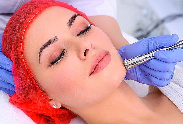 40 Sesiones Limpieza Facial Profunda con MIcrodermoabrasión