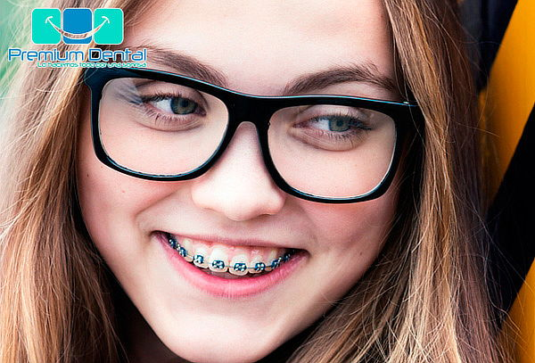 Brackets Superior e Inferior en Premium Plaza