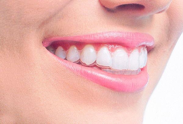 Ortodoncia con Alineadores Invisibles Chapinero Alto